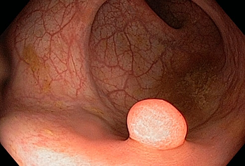 phototake_rm_of_polyp_in_the_colon.jpg